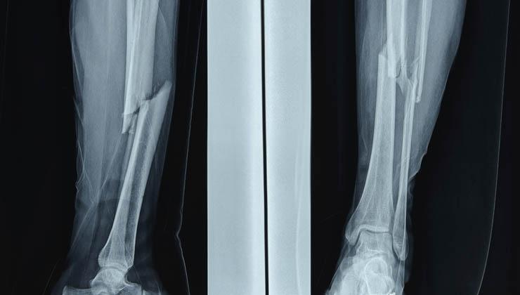 Der Schienbeinbruch – Interview zu Diagnose, Behandlung und Heilungsdauer