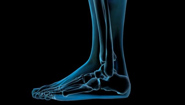 Häufige Fußbeschwerden: Hallux Valgus, Knick-Senkfuß & Morton Neurom