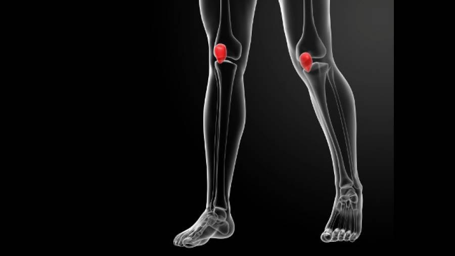 Kniescheibe raus – Frage an Dr. Sport