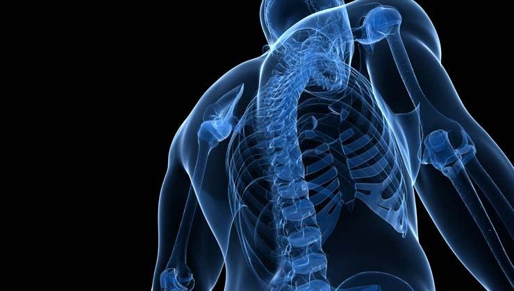 Morbus Bechterew – Ursache, Symptome, Behandlung