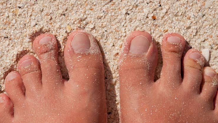 Zeigt her eure Füße - Diese Fußformen gibt es