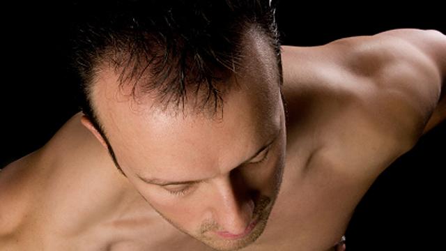Schluss mit Haarausfall! - Tipps und Ratschläge