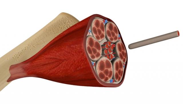 Anatomie – So ist ein Muskel aufgebaut