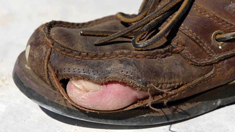 Schluss mit Käsefüßen – Wie verhindert man Fußgeruch