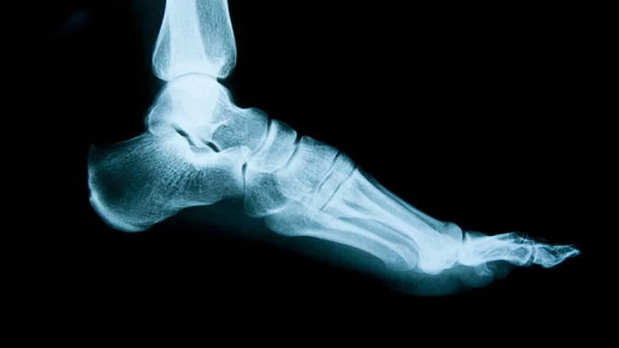 Geballte Füße – der Hallux Valgus