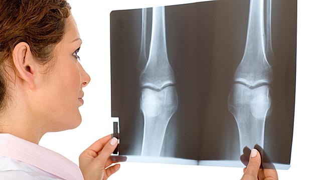 Unterm Messer - Wie sicher sind Knie-OPs