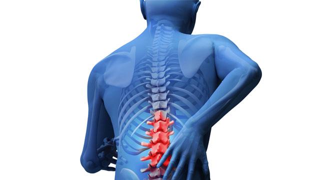 Osteoporose: Mythen aufgedeckt
